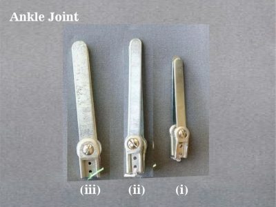 Ankle-Joint